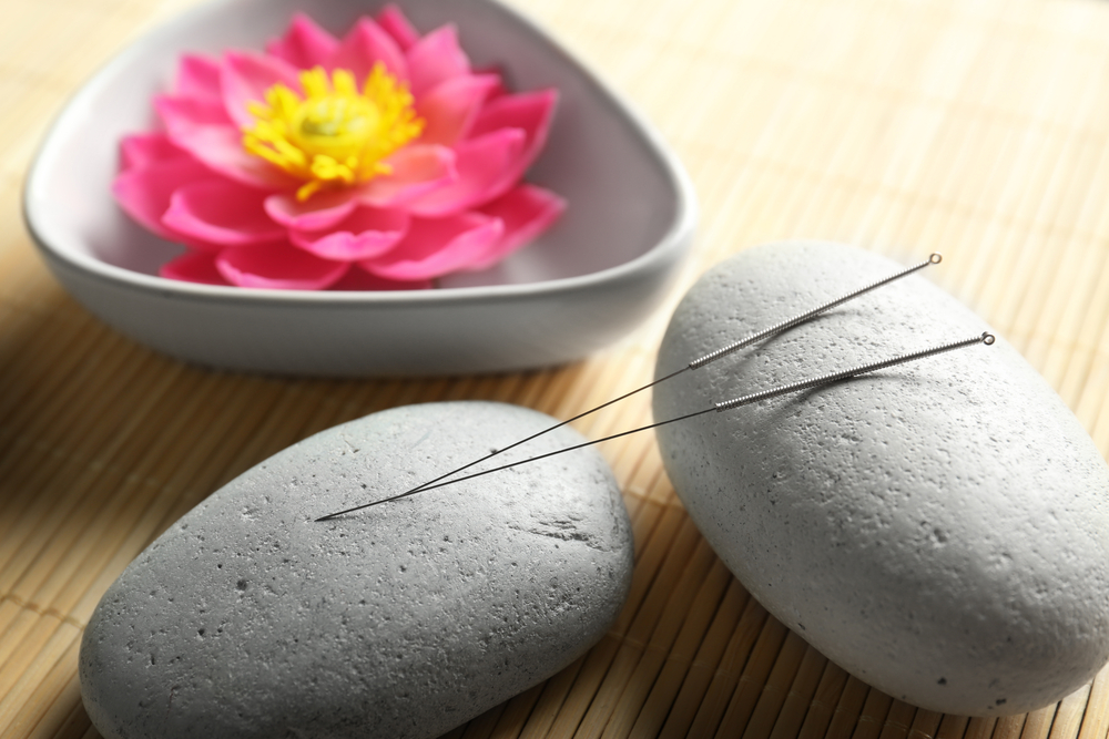 acupuncture treatment needles lying on two stones