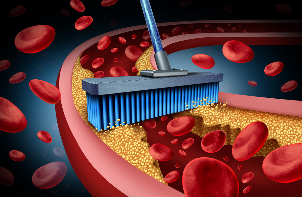graphic of a utility broom brushing the plaque from the inside of a vein