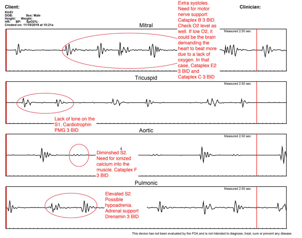 Sample of graphs from the heart sound recorder