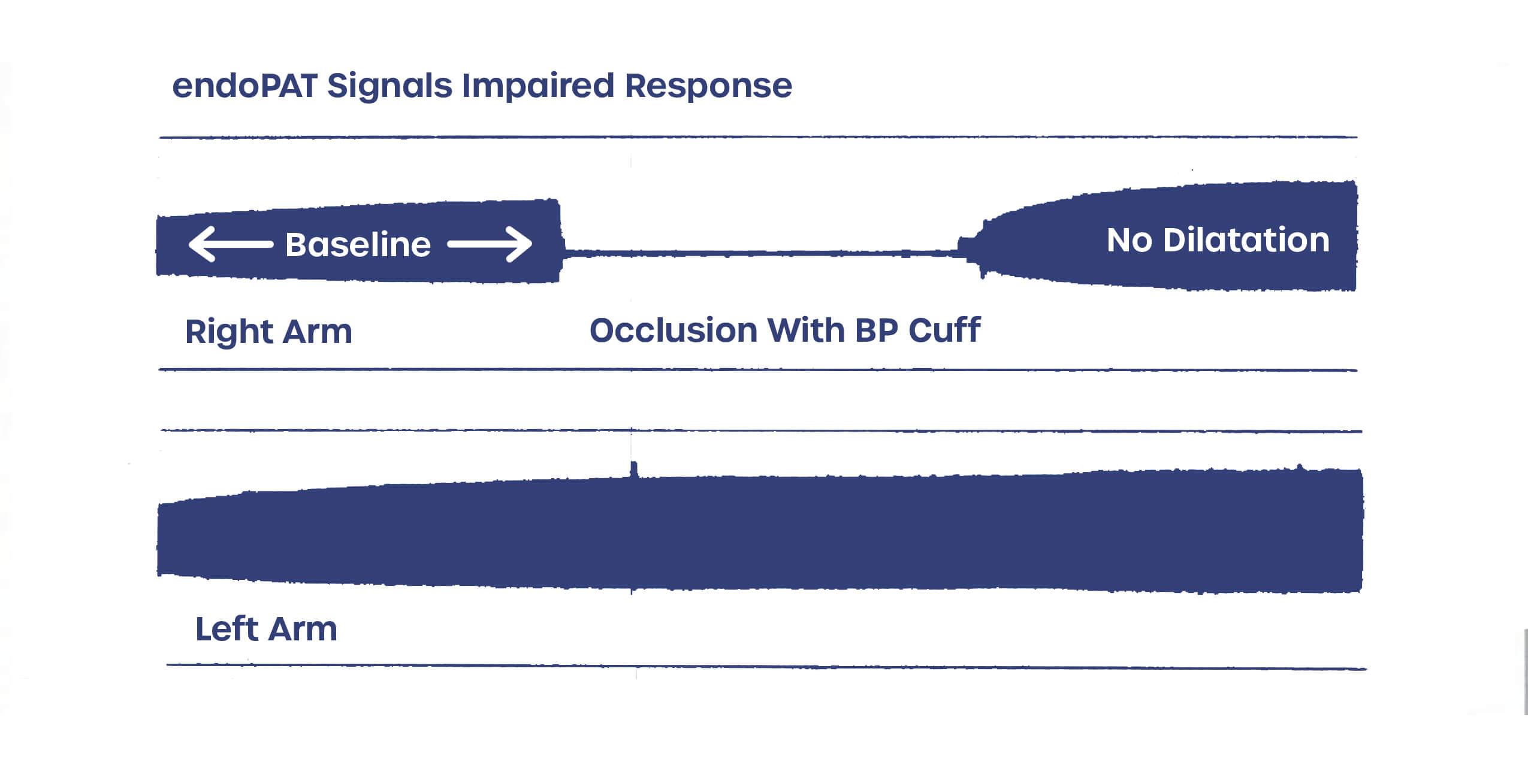 EndoPAT signals impaired response