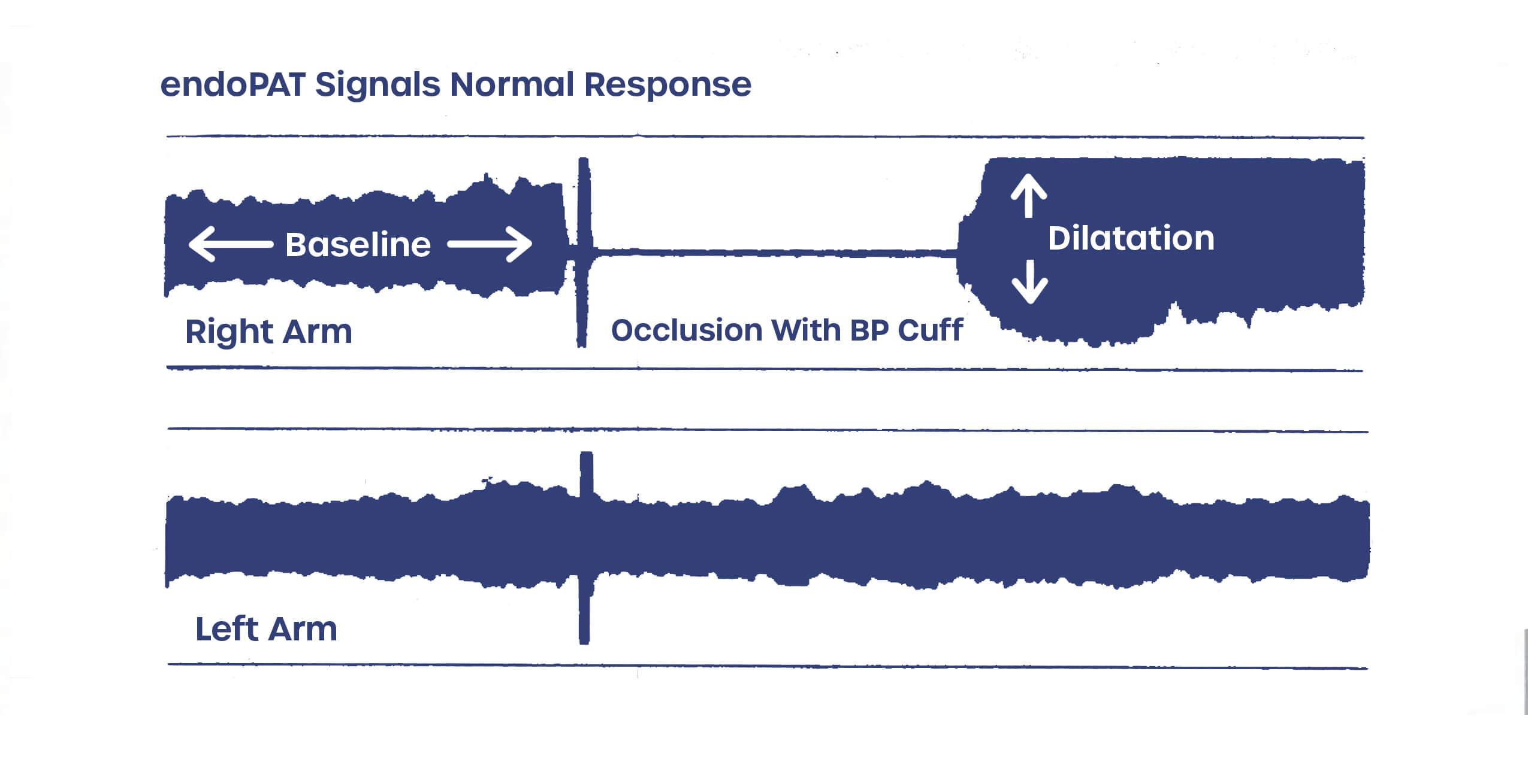EndoPAT signals normal response