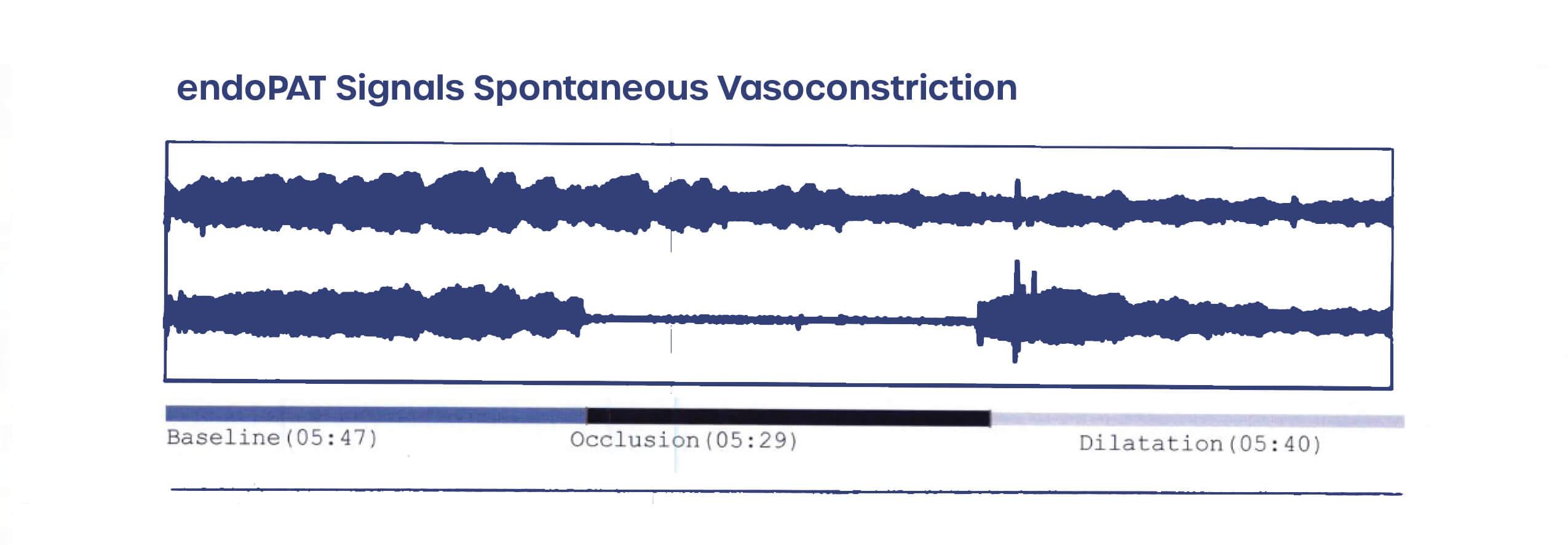EndoPAT signals spontaneous vasoconstriction